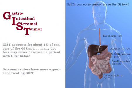 Primary Tumor Locations for GIST