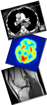 MRI, PET, and CT Scans