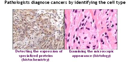 diagnosis_cell_type