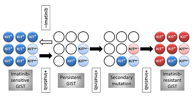 Figure 1. Hypothetical stem cell model of GIST persistence and acquired therapy resistance. Light blue circles: KIT-independent precursors carrying imatinib-sensitive KIT mutation but expressing very little or no KIT protein (KITlow/–). Dark blue circles: KIT+ cells arising from the KITlow/– cells carrying imatinib-sensitive KIT mutation. Open circles: dead cells. Pink circles: KITlow/–, KIT-independent precursors with acquired secondary imatinib-resistant mutation. Red circles: KIT+ cells differentiated from the KITlow/– precursors with secondary imatinib-resistant mutation. Filled arrow: imatinib treatment. Open arrow: cessation of imatinib treatment.