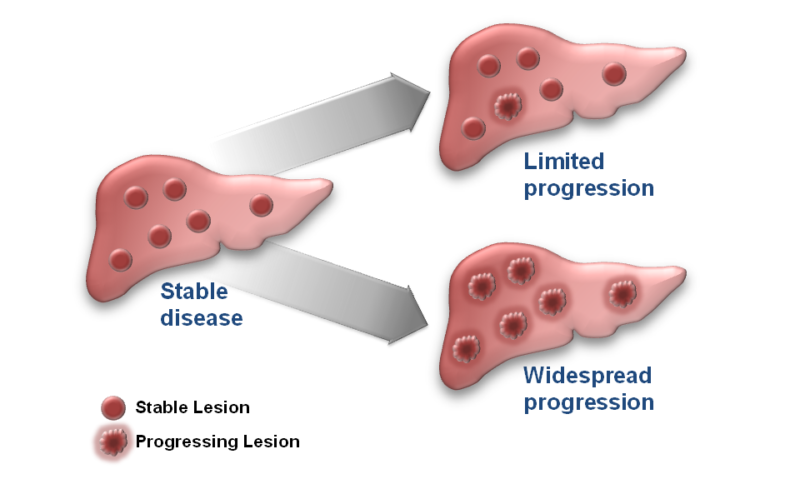GIST Progression Progressions on Gleevec