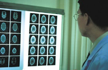 Doctor examining scans